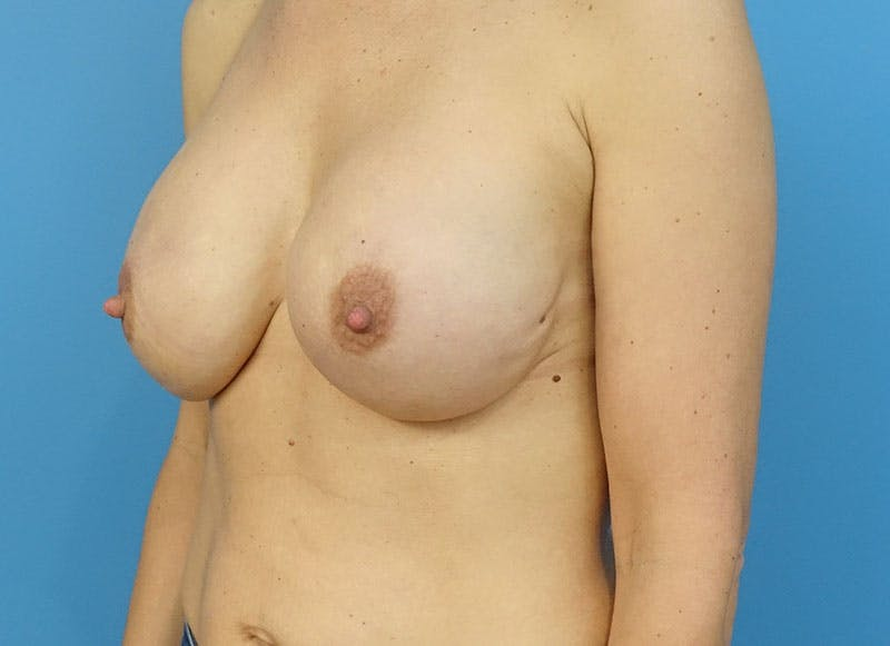 Breast Reconstruction - Implant Gallery - Patient 3833945 - Image 4
