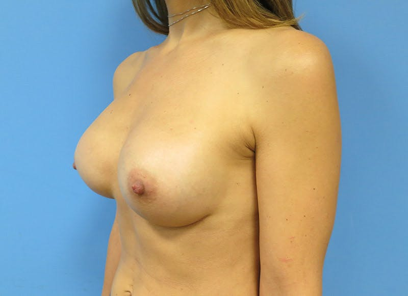 Breast Reconstruction - Implant Gallery - Patient 3833944 - Image 8
