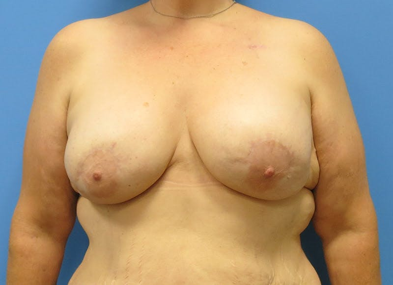 Breast Reconstruction - Implant Gallery - Patient 3833946 - Image 2
