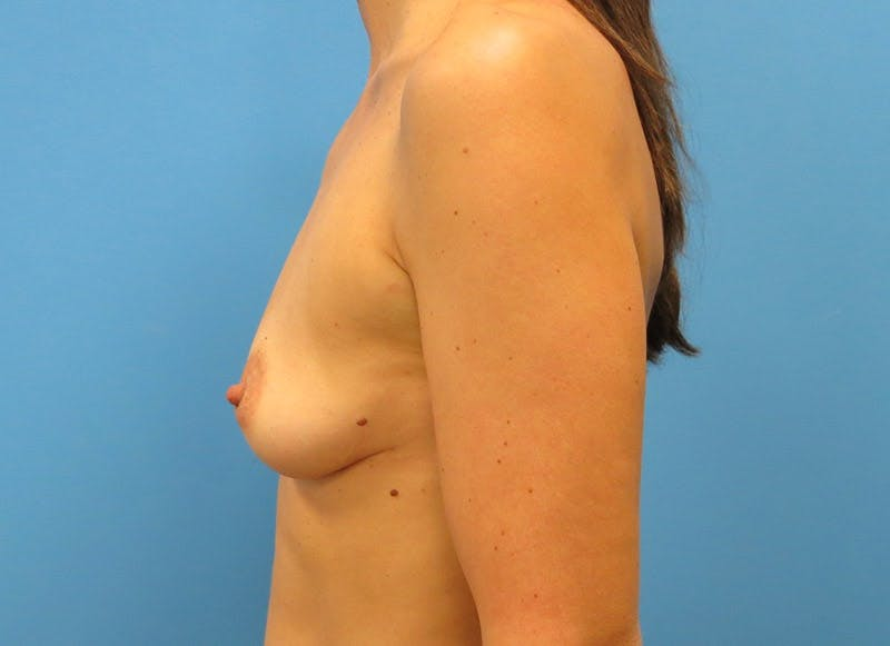 Breast Reconstruction - Implant Gallery - Patient 3833945 - Image 5
