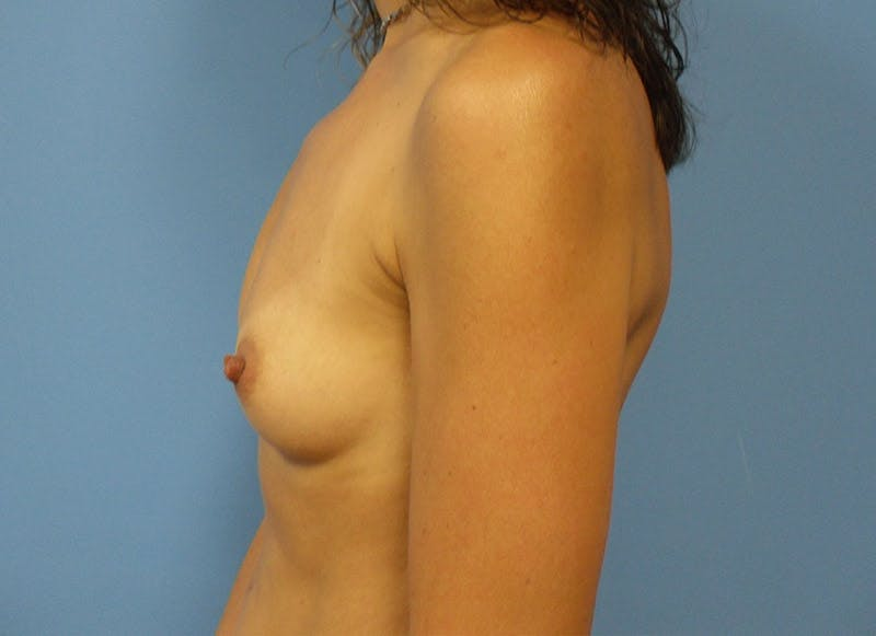Breast Reconstruction - Implant Gallery - Patient 3833944 - Image 9