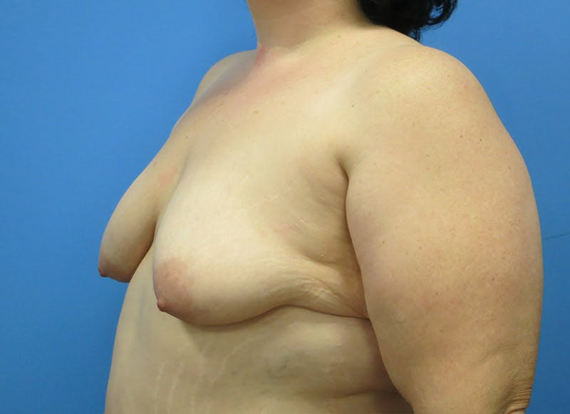 Breast Reconstruction - Implant Gallery - Patient 3833946 - Image 3
