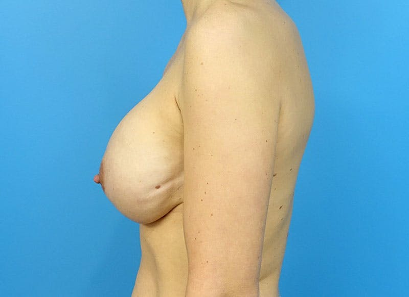Breast Reconstruction - Implant Gallery - Patient 3833945 - Image 6