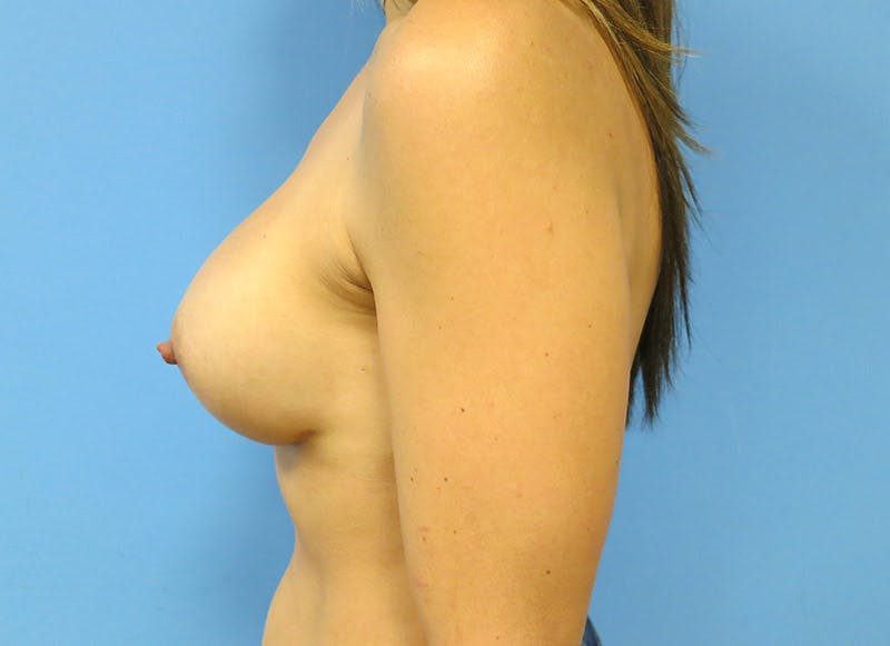 Breast Reconstruction - Implant Gallery - Patient 3833944 - Image 10