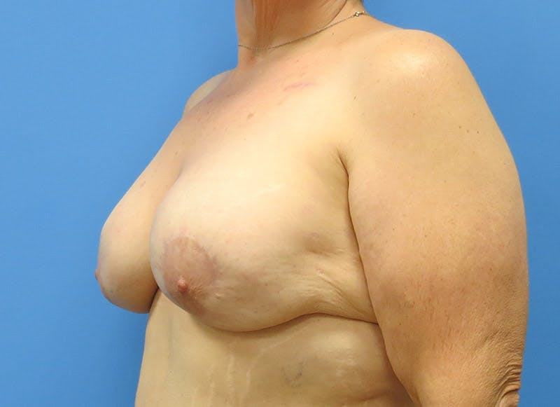 Breast Reconstruction - Implant Gallery - Patient 3833946 - Image 4