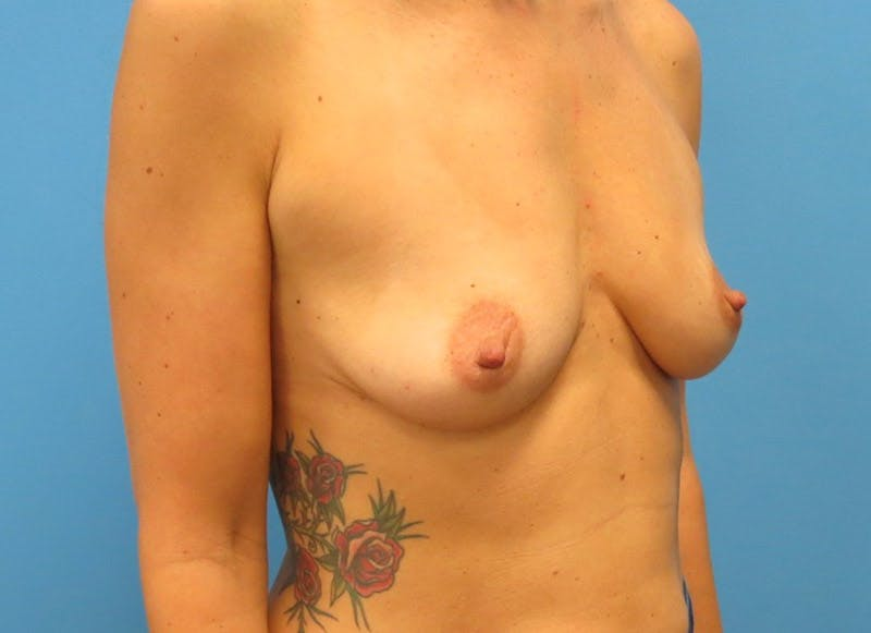 Breast Reconstruction - Implant Gallery - Patient 3833945 - Image 7