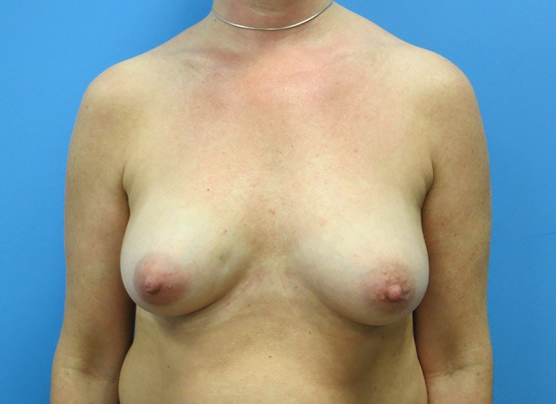 Breast Reconstruction - Implant Gallery - Patient 3833947 - Image 1