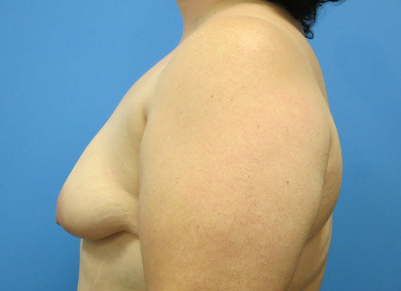 Breast Reconstruction - Implant Gallery - Patient 3833946 - Image 5