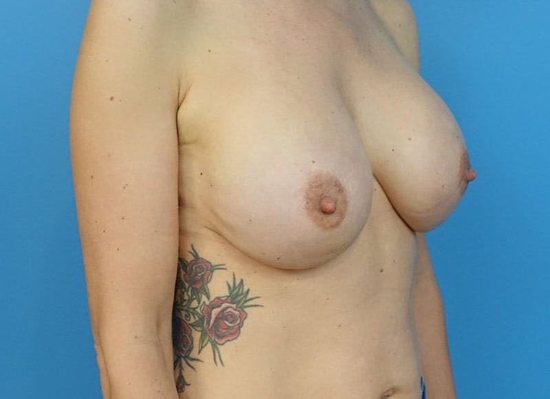 Breast Reconstruction - Implant Gallery - Patient 3833945 - Image 8