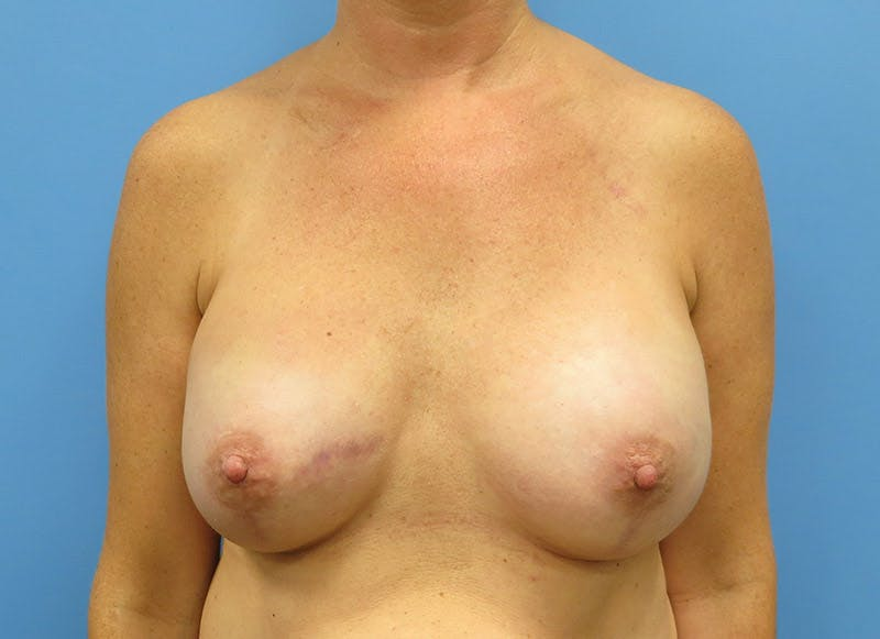 Breast Reconstruction - Implant Gallery - Patient 3833947 - Image 2