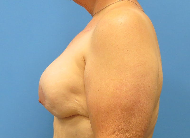 Breast Reconstruction - Implant Gallery - Patient 3833946 - Image 6