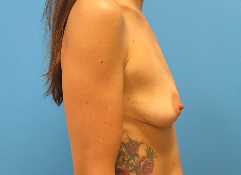 Breast Reconstruction - Implant Gallery - Patient 3833945 - Image 9