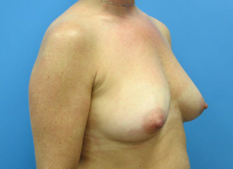 Breast Reconstruction - Implant Gallery - Patient 3833947 - Image 3
