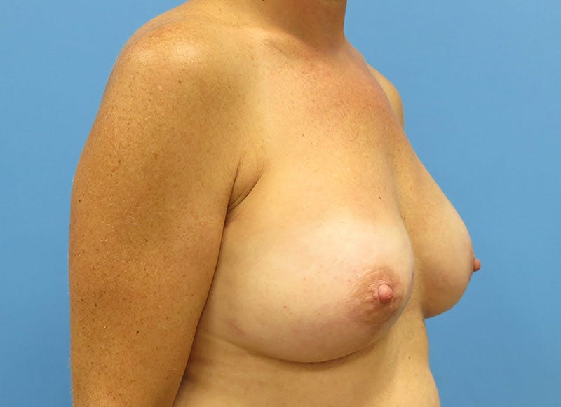 Breast Reconstruction - Implant Gallery - Patient 3833947 - Image 4