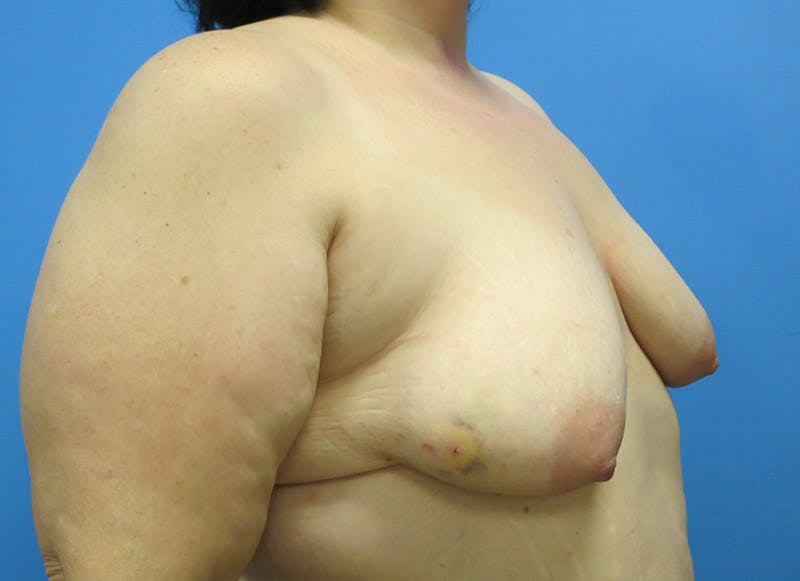 Breast Reconstruction - Implant Gallery - Patient 3833946 - Image 7