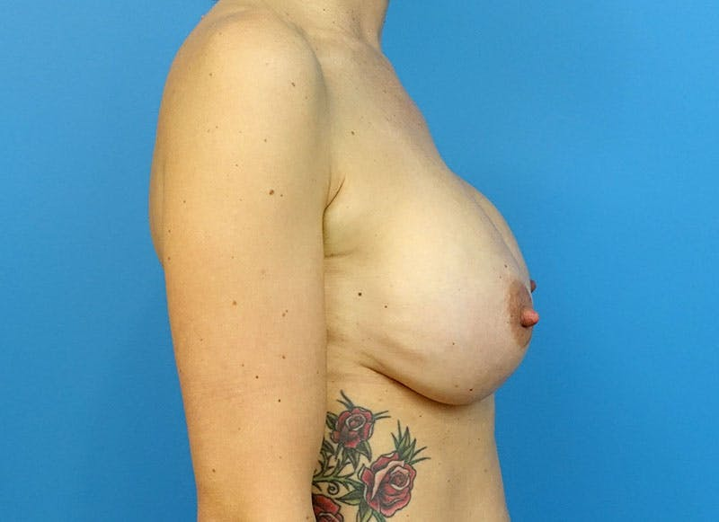 Breast Reconstruction - Implant Gallery - Patient 3833945 - Image 10