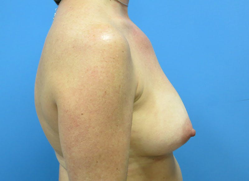 Breast Reconstruction - Implant Gallery - Patient 3833947 - Image 5