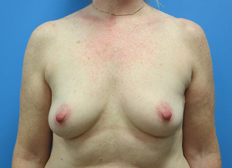 Breast Reconstruction - Implant Gallery - Patient 3833948 - Image 1