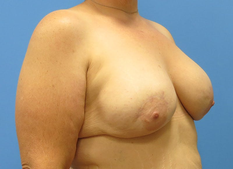 Breast Reconstruction - Implant Gallery - Patient 3833946 - Image 8