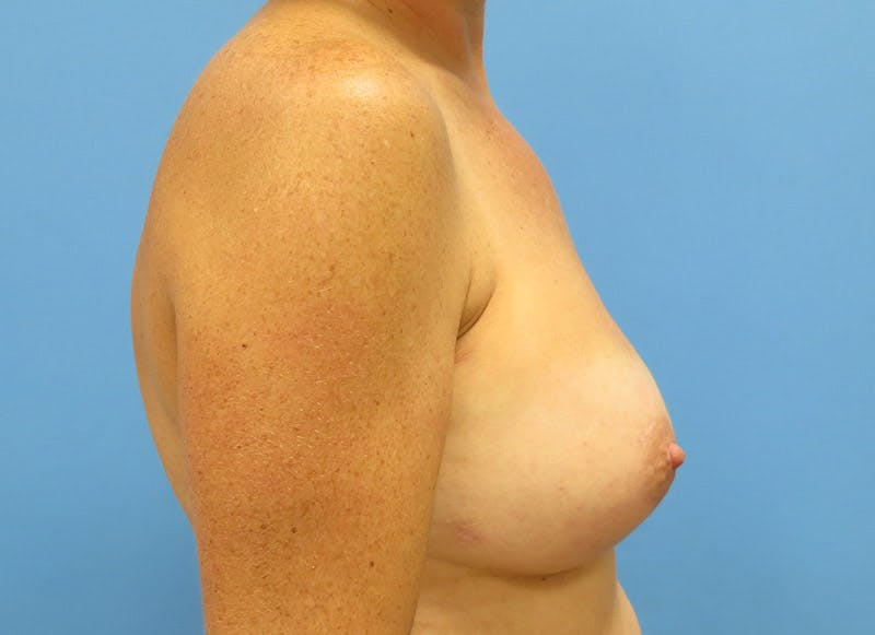 Breast Reconstruction - Implant Gallery - Patient 3833947 - Image 6