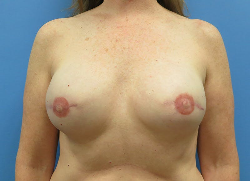 Breast Reconstruction - Implant Gallery - Patient 3833948 - Image 2