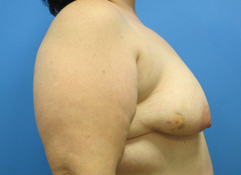 Breast Reconstruction - Implant Gallery - Patient 3833946 - Image 9