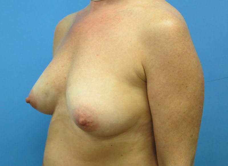 Breast Reconstruction - Implant Gallery - Patient 3833947 - Image 7