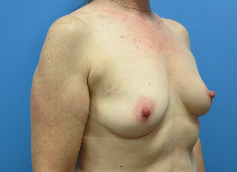 Breast Reconstruction - Implant Gallery - Patient 3833948 - Image 3