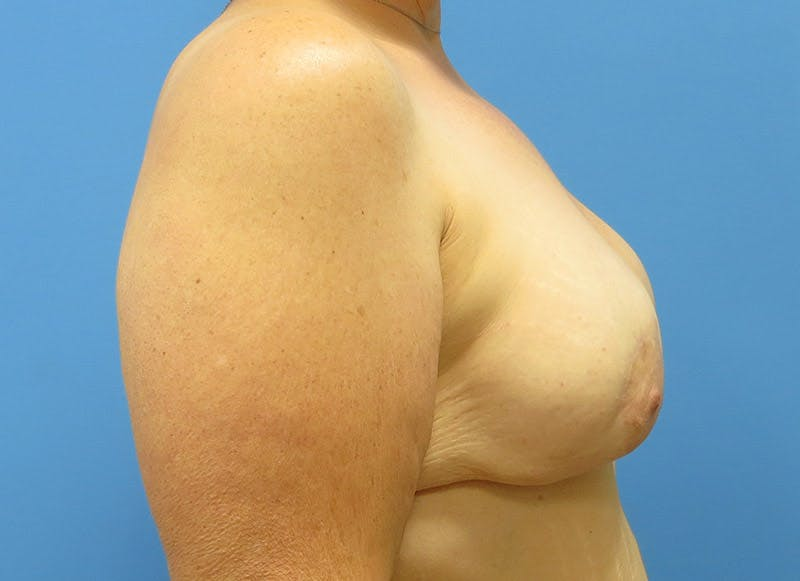 Breast Reconstruction - Implant Gallery - Patient 3833946 - Image 10