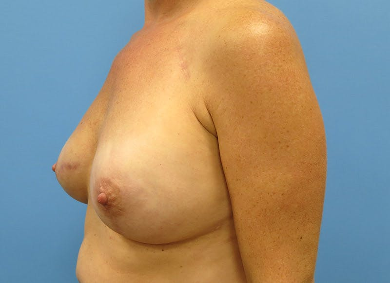Breast Reconstruction - Implant Gallery - Patient 3833947 - Image 8