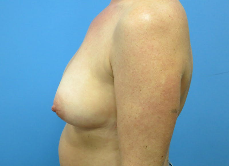 Breast Reconstruction - Implant Gallery - Patient 3833947 - Image 9