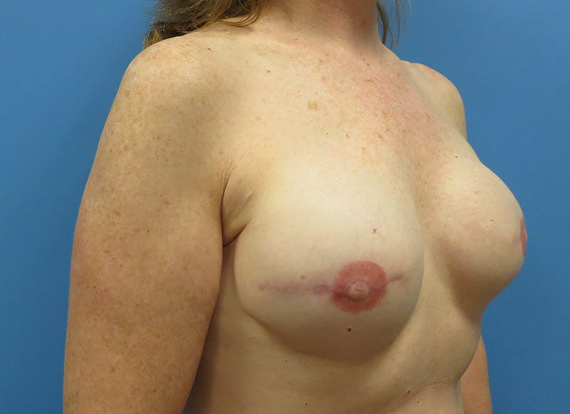 Breast Reconstruction - Implant Gallery - Patient 3833948 - Image 4