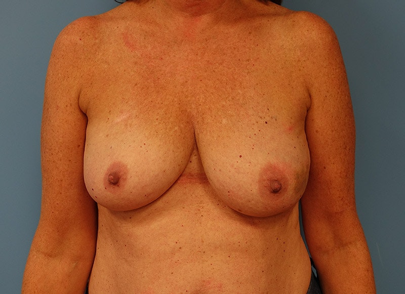 Breast Reconstruction - Implant Gallery - Patient 3833949 - Image 1