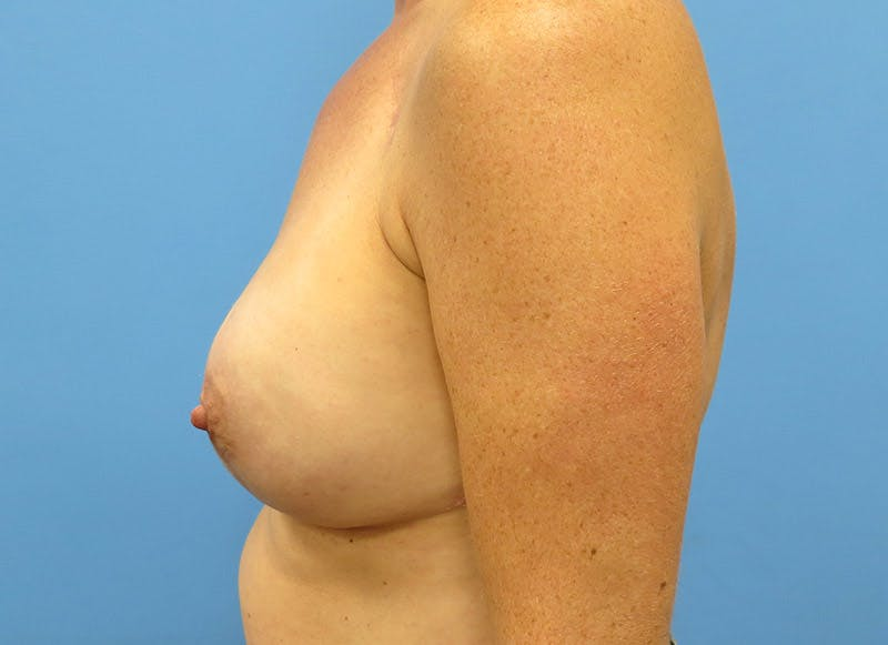 Breast Reconstruction - Implant Gallery - Patient 3833947 - Image 10