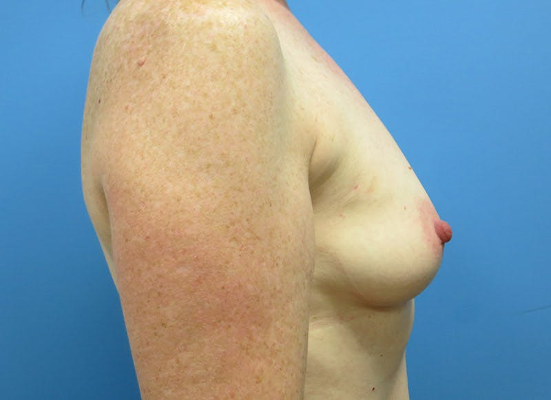 Breast Reconstruction - Implant Gallery - Patient 3833948 - Image 5