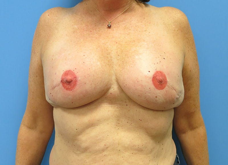 Breast Reconstruction - Implant Gallery - Patient 3833949 - Image 2