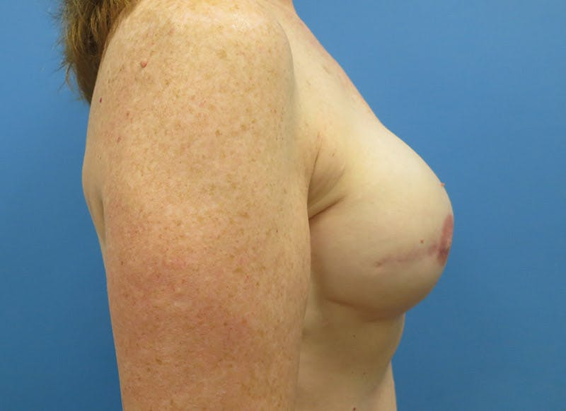Breast Reconstruction - Implant Gallery - Patient 3833948 - Image 6