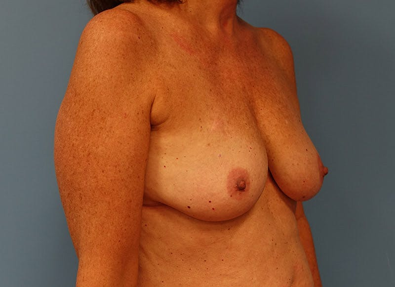 Breast Reconstruction - Implant Gallery - Patient 3833949 - Image 3
