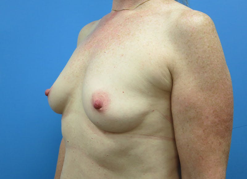 Breast Reconstruction - Implant Gallery - Patient 3833948 - Image 7