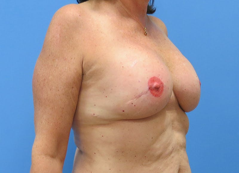 Breast Reconstruction - Implant Gallery - Patient 3833949 - Image 4
