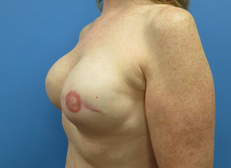 Breast Reconstruction - Implant Gallery - Patient 3833948 - Image 8