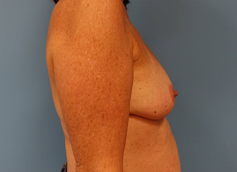 Breast Reconstruction - Implant Gallery - Patient 3833949 - Image 5
