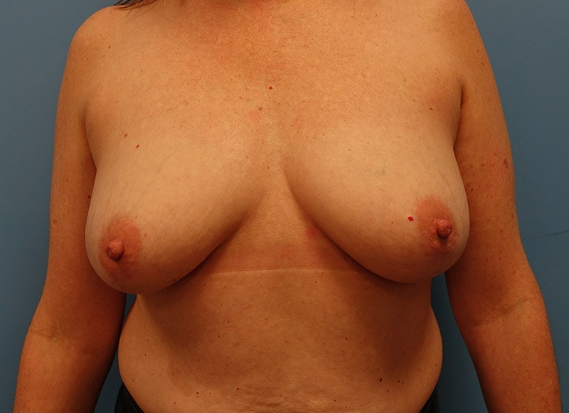Breast Reconstruction - Implant Gallery - Patient 3833950 - Image 1