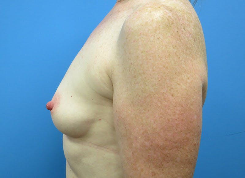 Breast Reconstruction - Implant Gallery - Patient 3833948 - Image 9
