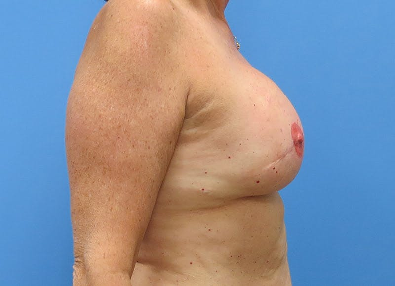 Breast Reconstruction - Implant Gallery - Patient 3833949 - Image 6