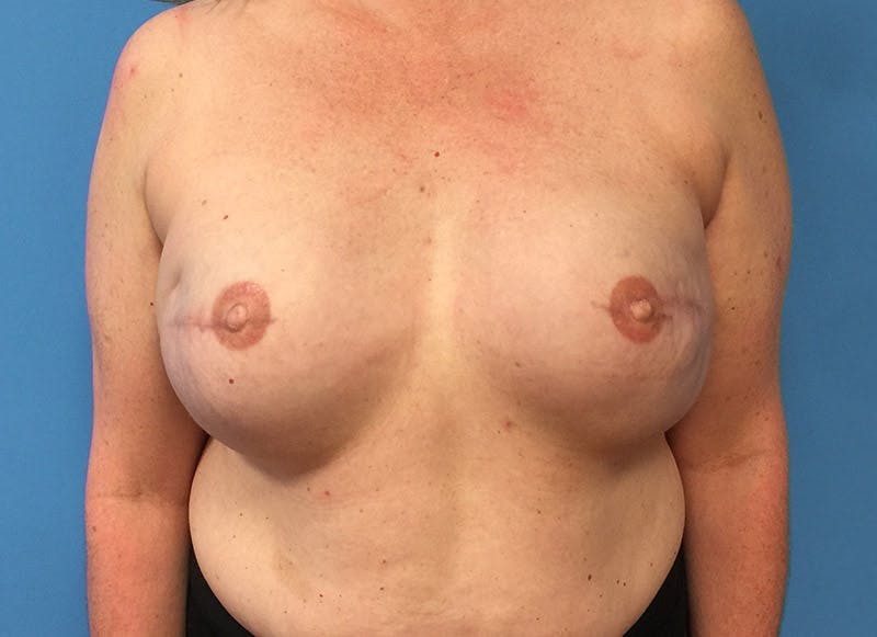 Breast Reconstruction - Implant Gallery - Patient 3833950 - Image 2