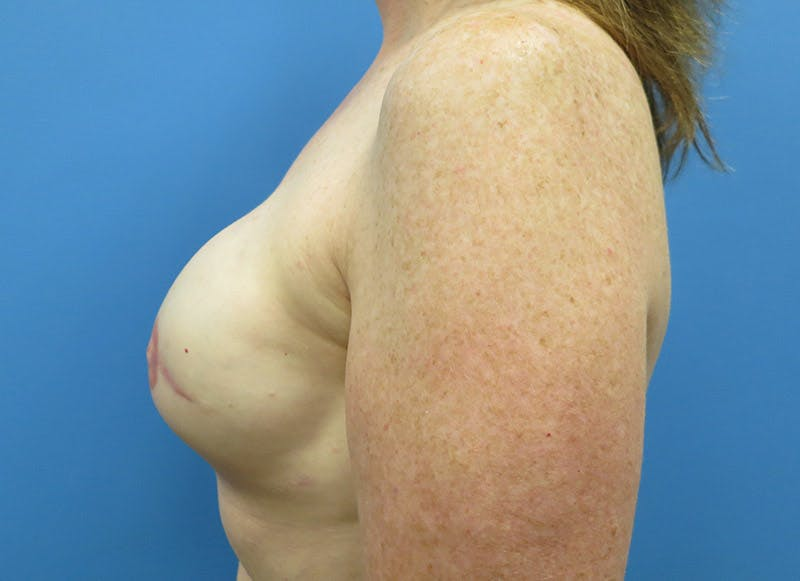 Breast Reconstruction - Implant Gallery - Patient 3833948 - Image 10