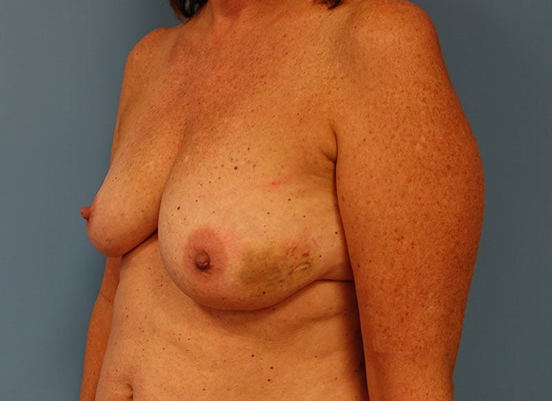 Breast Reconstruction - Implant Gallery - Patient 3833949 - Image 7