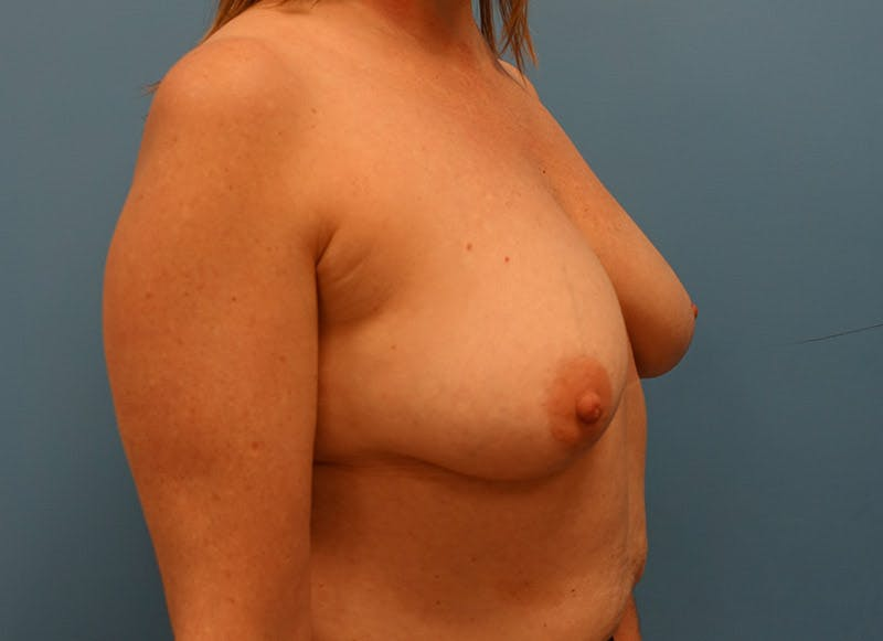 Breast Reconstruction - Implant Gallery - Patient 3833950 - Image 3
