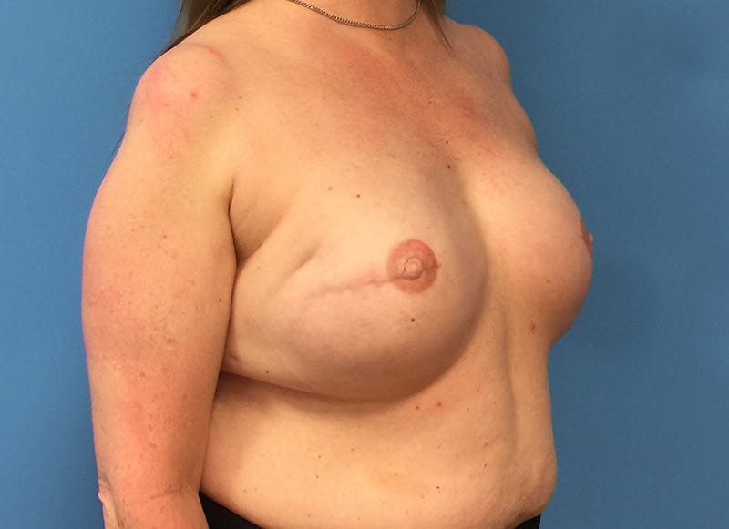 Breast Reconstruction - Implant Gallery - Patient 3833950 - Image 4